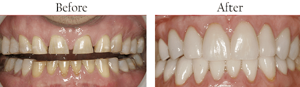 Smile Gallery, Surrey Dentist